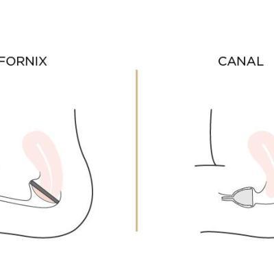 menstrual_cup_vs_menstrual_disc_graphics-03